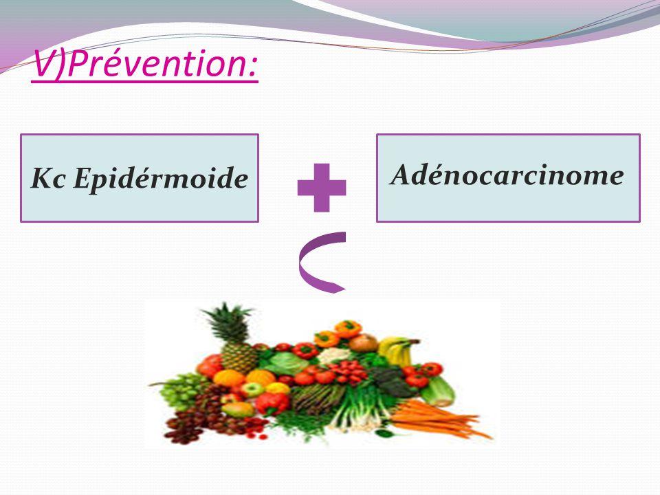 V)Prévention: Kc Epidérmoide Adénocarcinome