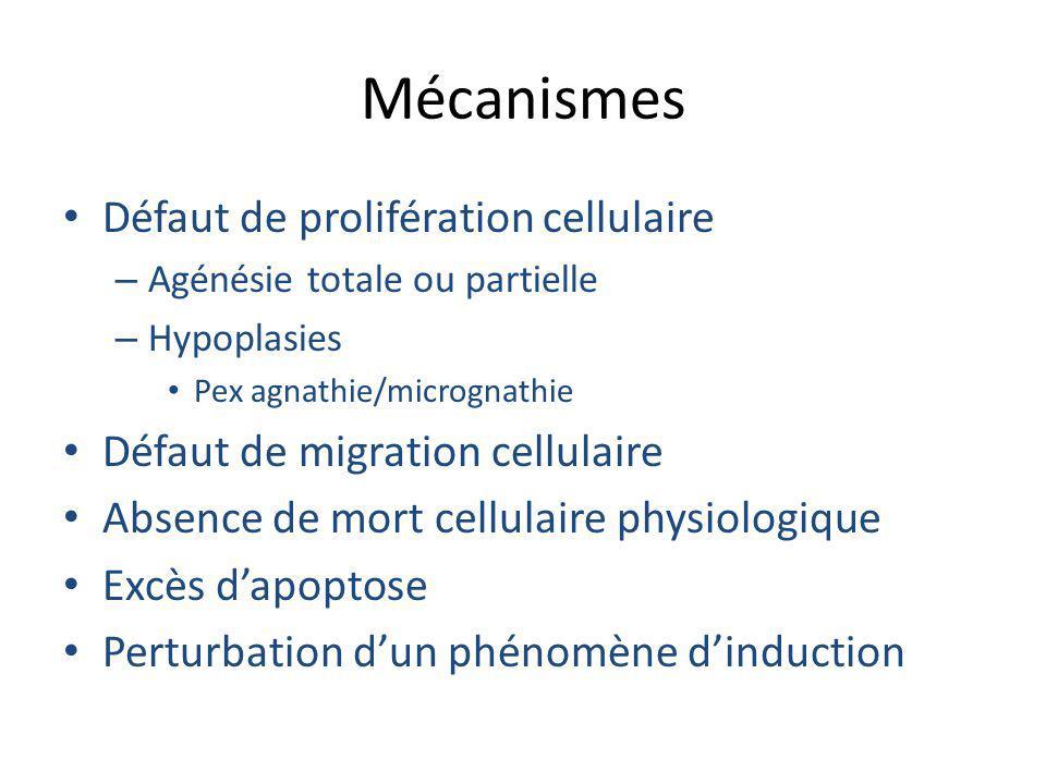 Mécanismes Défaut de prolifération cellulaire – Agénésie totale ou partielle – Hypoplasies Pex agnathie/micrognathie Défaut de migration cellulaire Ab