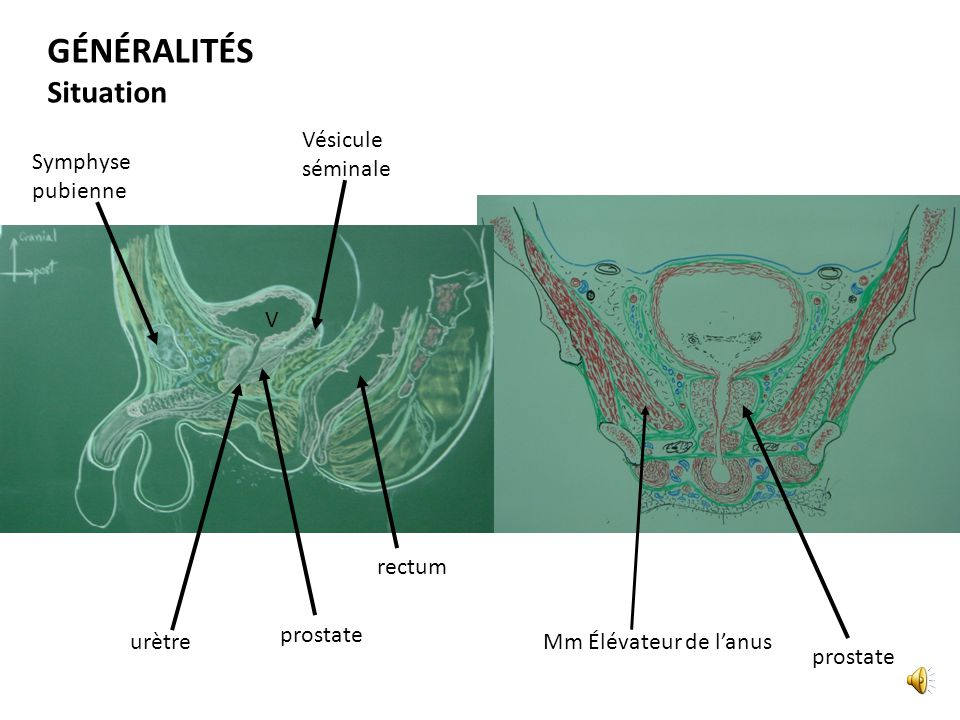 Vue en coupe sagittale Ligt pubo-prostatique Glande bulbo-urétrale Sphincter de lurètre Centre tendineux du périné Septum Recto-vésical