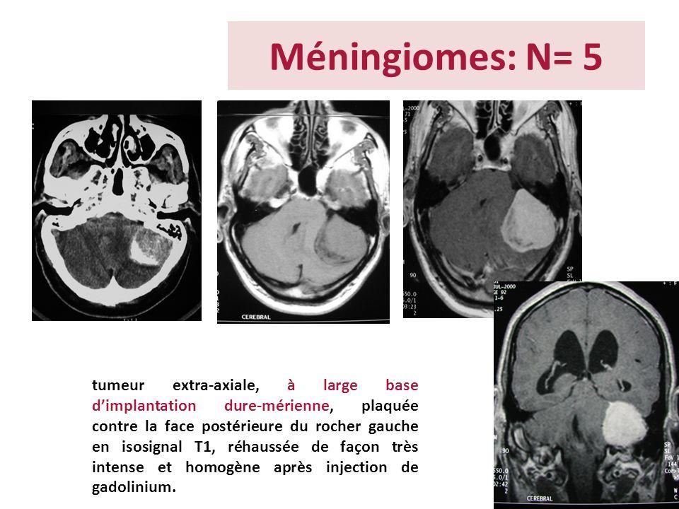 Méningiomes: N= 5 tumeur extra-axiale, à large base dimplantation dure-mérienne, plaquée contre la face postérieure du rocher gauche en isosignal T1,