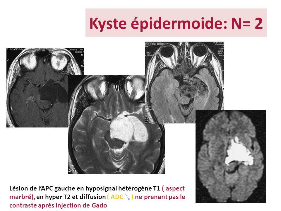 Kyste épidermoide: N= 2 Lésion de lAPC gauche en hyposignal hétérogène T1 ( aspect marbré), en hyper T2 et diffusion ( ADC ) ne prenant pas le contras