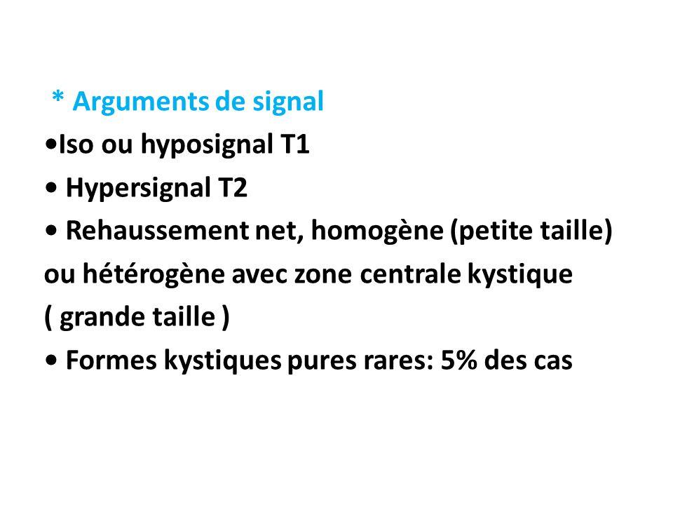 * Arguments de signal Iso ou hyposignal T1 Hypersignal T2 Rehaussement net, homogène (petite taille) ou hétérogène avec zone centrale kystique ( grand