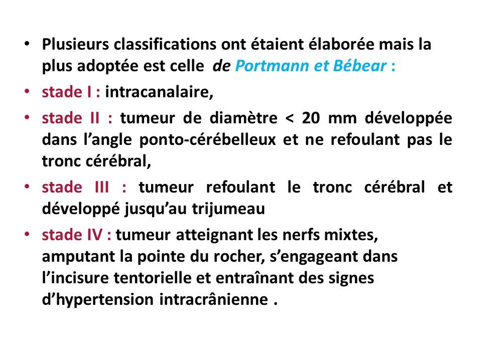 Plusieurs classifications ont étaient élaborée mais la plus adoptée est celle de Portmann et Bébear : stade I : intracanalaire, stade II : tumeur de d