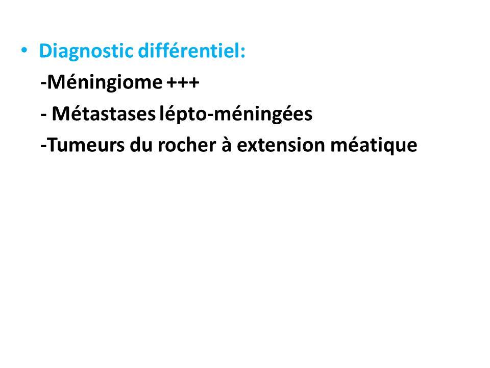 Diagnostic différentiel: -Méningiome +++ - Métastases lépto-méningées -Tumeurs du rocher à extension méatique