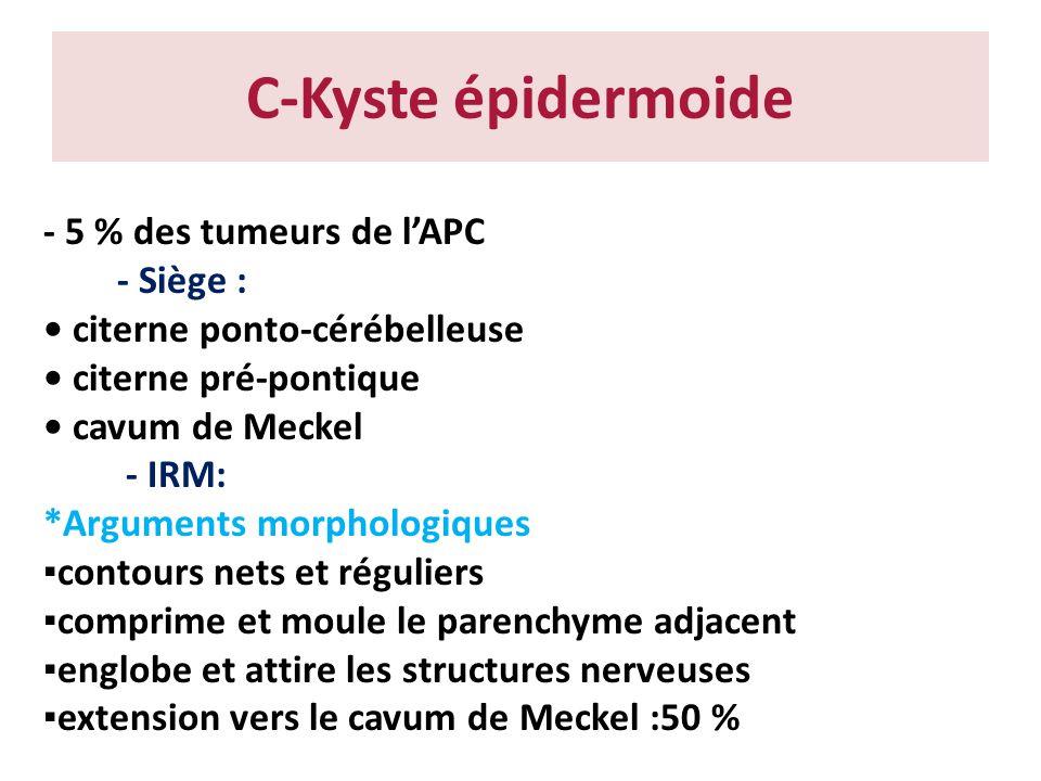 C-Kyste épidermoide - 5 % des tumeurs de lAPC - Siège : citerne ponto-cérébelleuse citerne pré-pontique cavum de Meckel - IRM: *Arguments morphologiqu