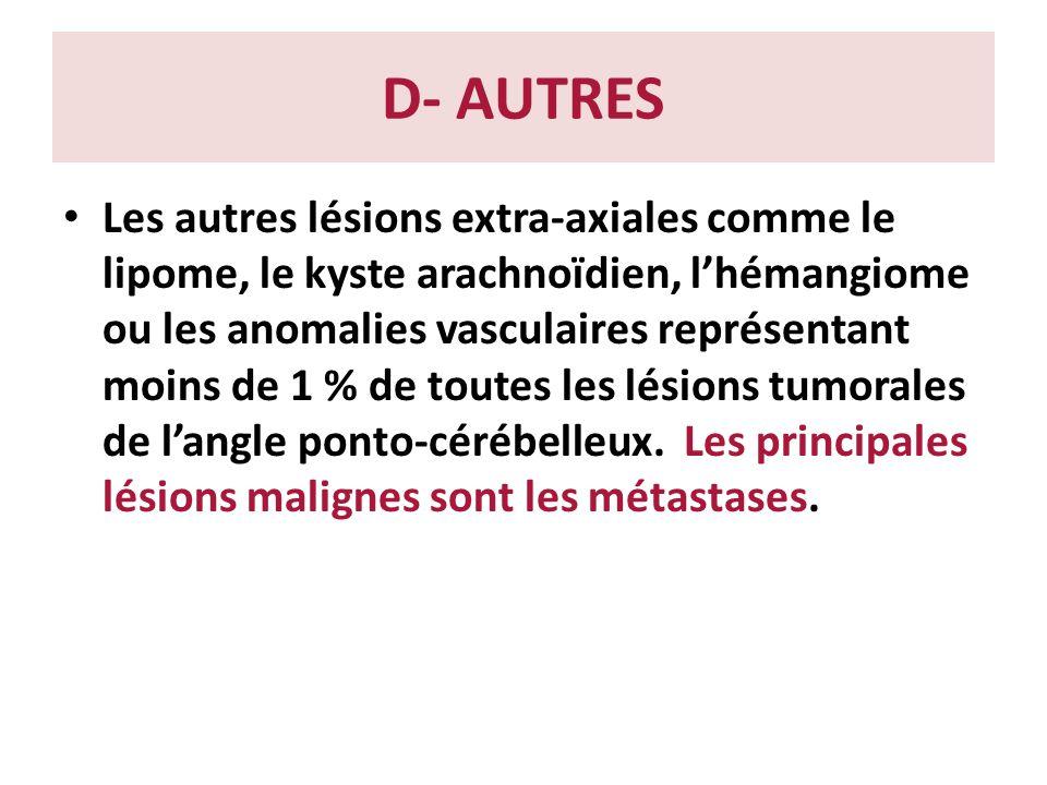 D- AUTRES Les autres lésions extra-axiales comme le lipome, le kyste arachnoïdien, lhémangiome ou les anomalies vasculaires représentant moins de 1 %