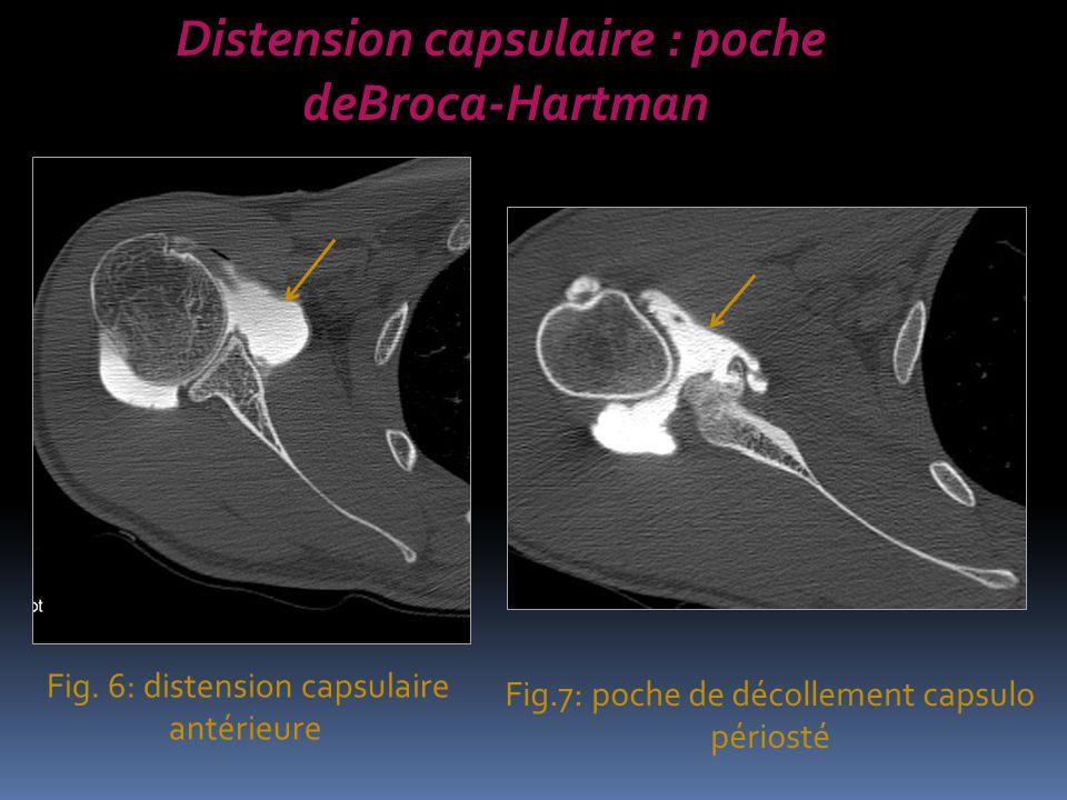 Fig. 6: distension capsulaire antérieure Fig.7: poche de décollement capsulo périosté Distension capsulaire : poche deBroca-Hartman
