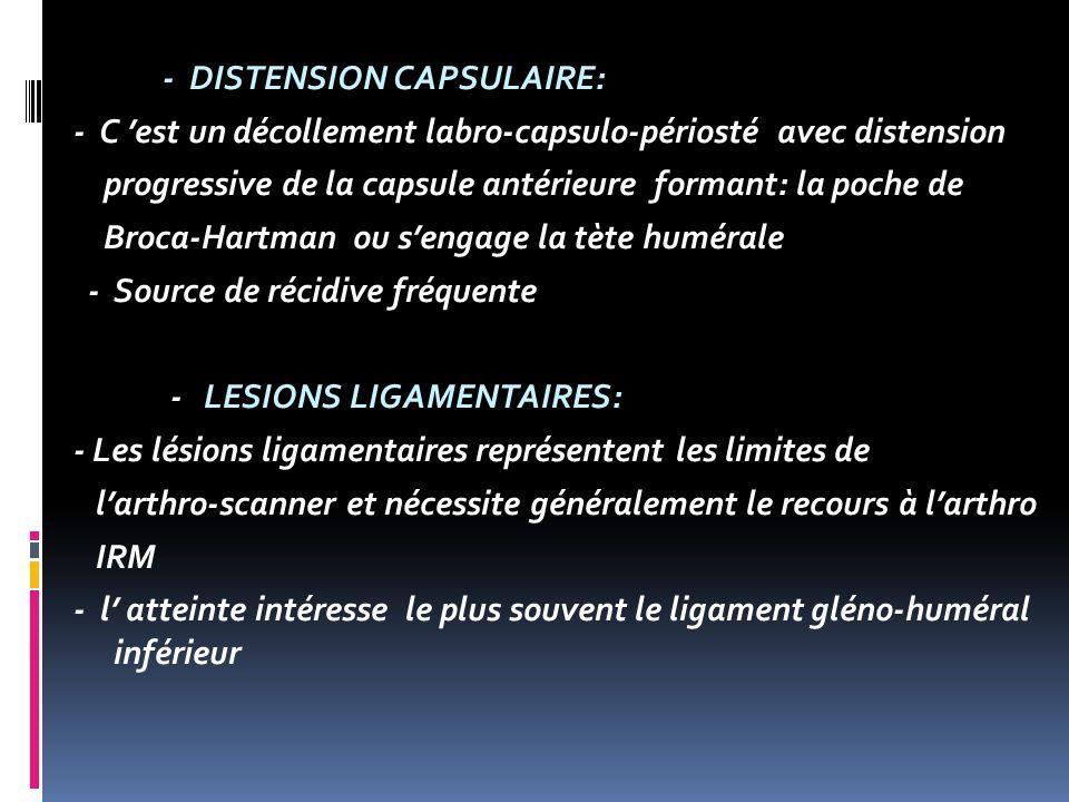 - DISTENSION CAPSULAIRE: - C est un décollement labro-capsulo-périosté avec distension progressive de la capsule antérieure formant: la poche de Broca-Hartman ou sengage la tète humérale - Source de récidive fréquente - LESIONS LIGAMENTAIRES: - Les lésions ligamentaires représentent les limites de larthro-scanner et nécessite généralement le recours à larthro IRM - l atteinte intéresse le plus souvent le ligament gléno-huméral inférieur
