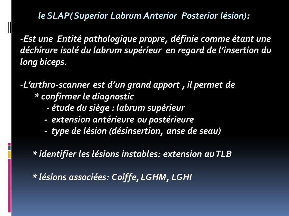 le SLAP( Superior Labrum Anterior Posterior lésion): -Est une Entité pathologique propre, définie comme étant une déchirure isolé du labrum supérieur en regard de linsertion du long biceps.