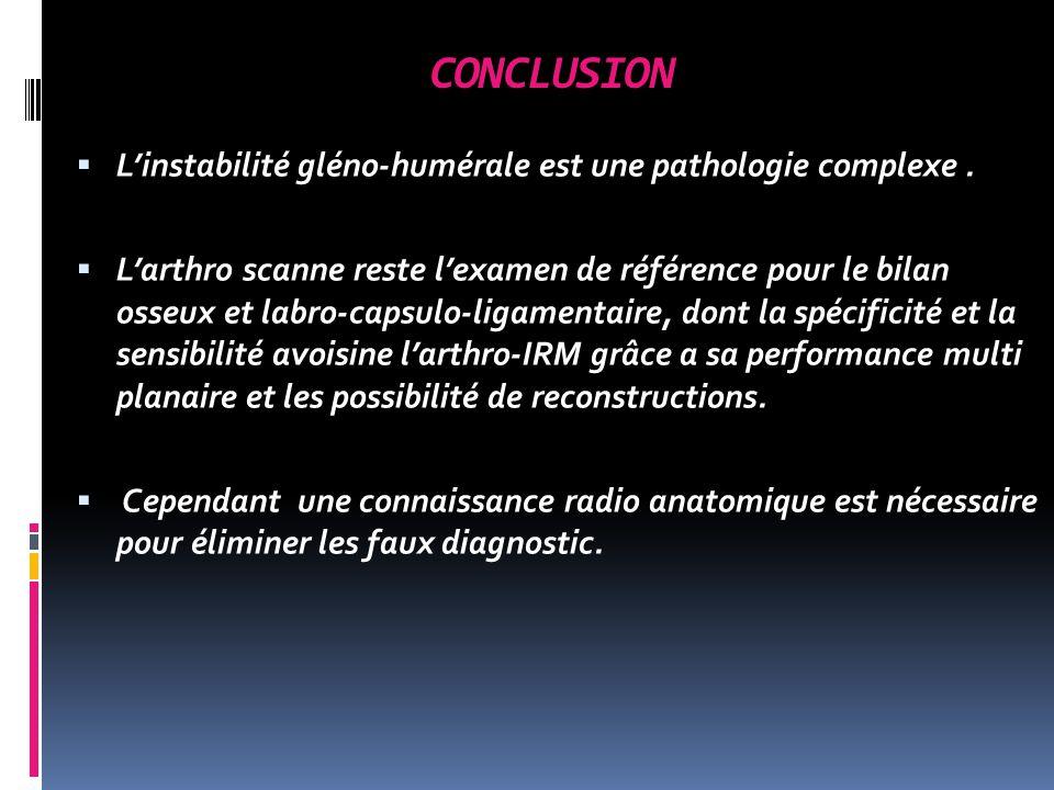CONCLUSION Linstabilité gléno-humérale est une pathologie complexe.
