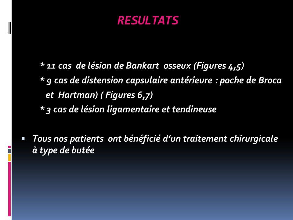 Fig.1: arthro-scanner coupes axiale (a), coronale (b) et sagittale © a b c Encoche de Hill-Sachs