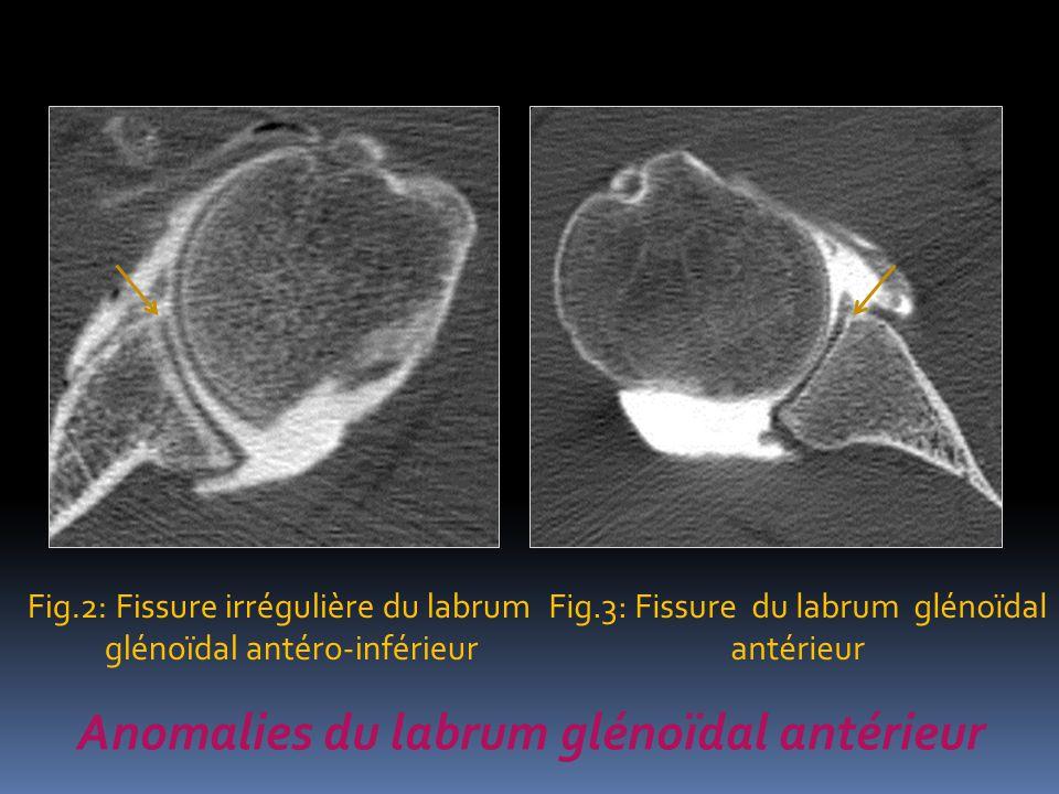 Anomalies du labrum glénoïdal antérieur Fig.2: Fissure irrégulière du labrum glénoïdal antéro-inférieur Fig.3: Fissure du labrum glénoïdal antérieur