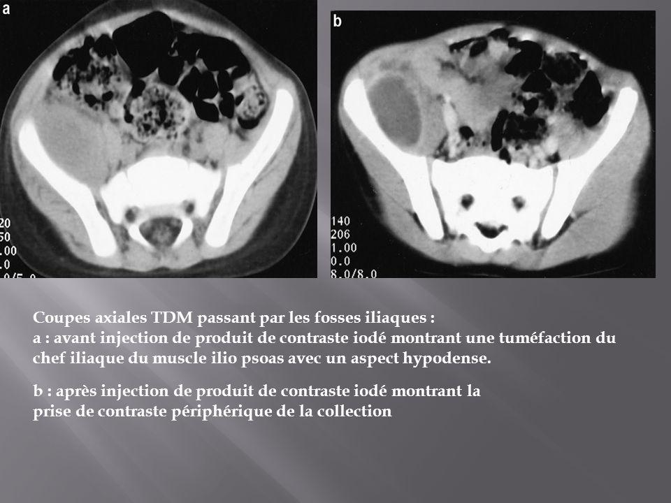 Coupes axiales TDM passant par les fosses iliaques : a : avant injection de produit de contraste iodé montrant une tuméfaction du chef iliaque du musc