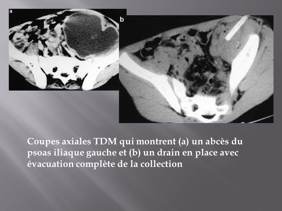 Coupes axiales TDM qui montrent (a) un abcès du psoas iliaque gauche et (b) un drain en place avec évacuation complète de la collection