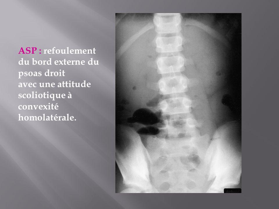 ASP : refoulement du bord externe du psoas droit avec une attitude scoliotique à convexité homolatérale.