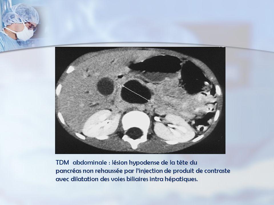 ésion hypodense de la tête du pancréas non rehaussée par linjection de produit de contraste avec dilatation des voies biliaires intra hépatiques.