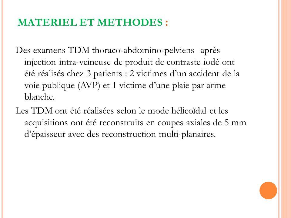 MATERIEL ET METHODES : Des examens TDM thoraco-abdomino-pelviens après injection intra-veineuse de produit de contraste iodé ont été réalisés chez 3 p