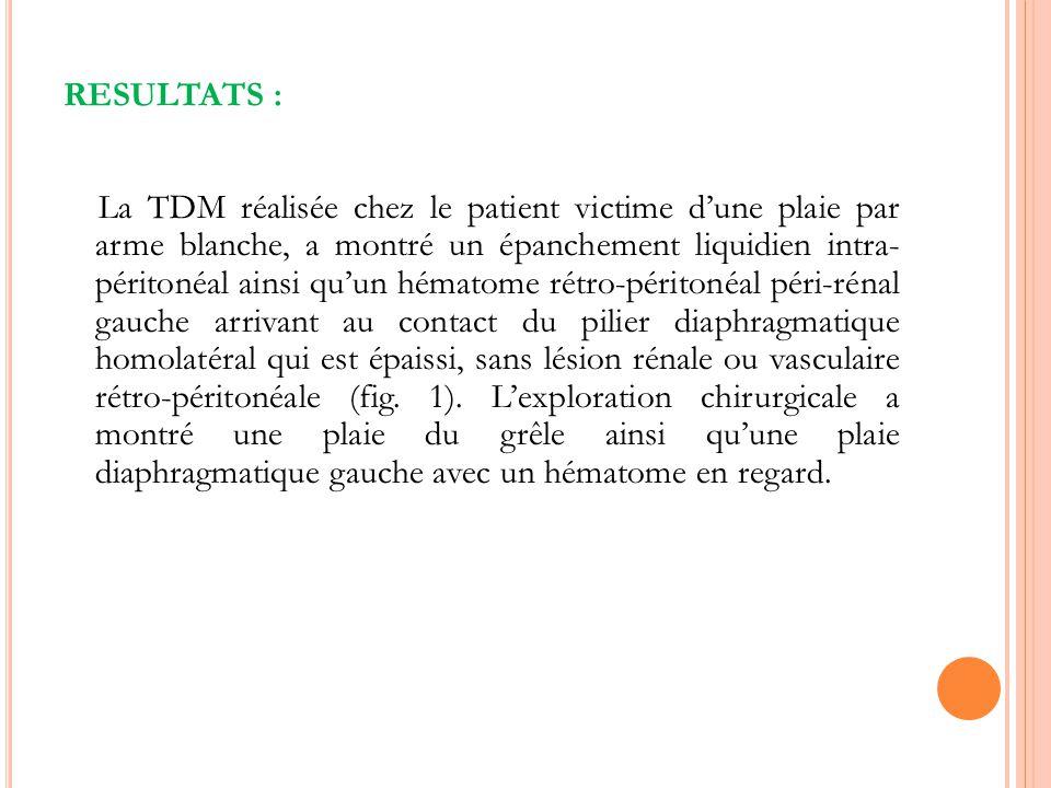 RESULTATS : La TDM réalisée chez le patient victime dune plaie par arme blanche, a montré un épanchement liquidien intra- péritonéal ainsi quun hémato