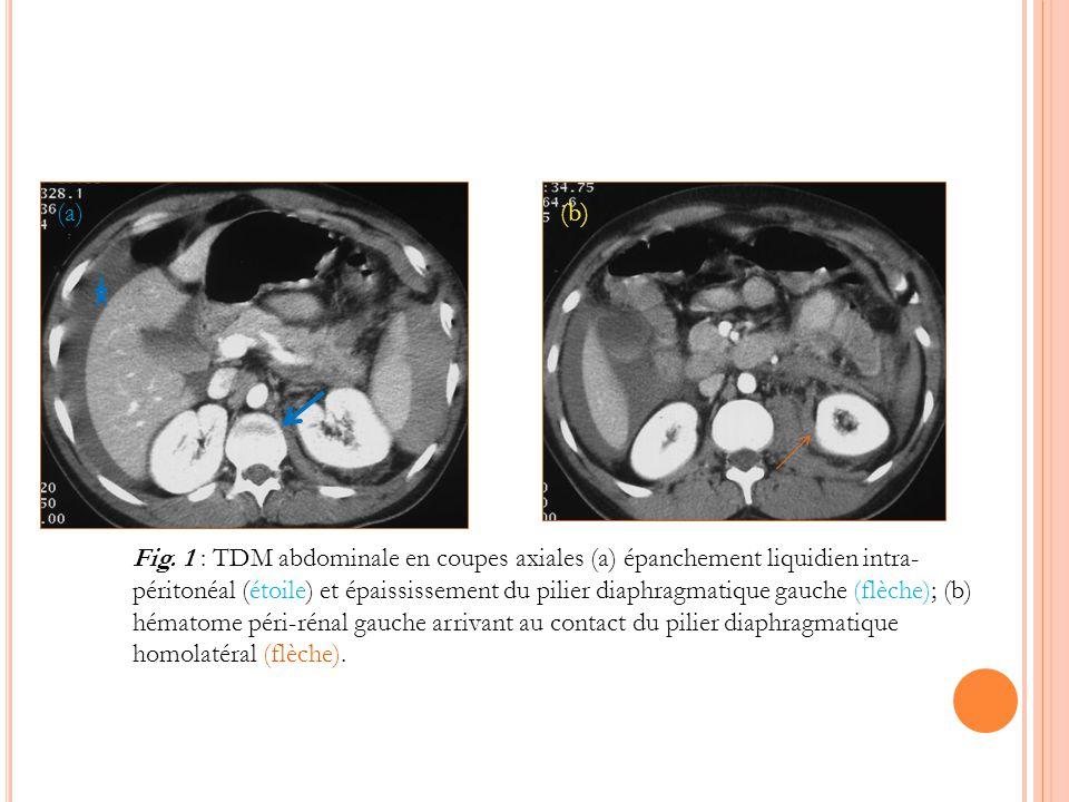 Fig. 1 : TDM abdominale en coupes axiales (a) épanchement liquidien intra- péritonéal (étoile) et épaississement du pilier diaphragmatique gauche (flè