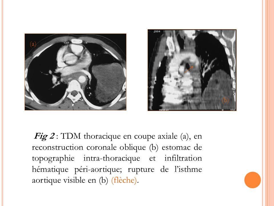 Fig 2 : TDM thoracique en coupe axiale (a), en reconstruction coronale oblique (b) estomac de topographie intra-thoracique et infiltration hématique p