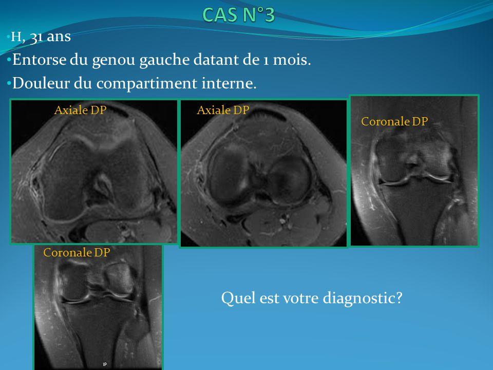 H, 31 ans Entorse du genou gauche datant de 1 mois. Douleur du compartiment interne. Coronale DP Axiale DP Quel est votre diagnostic?
