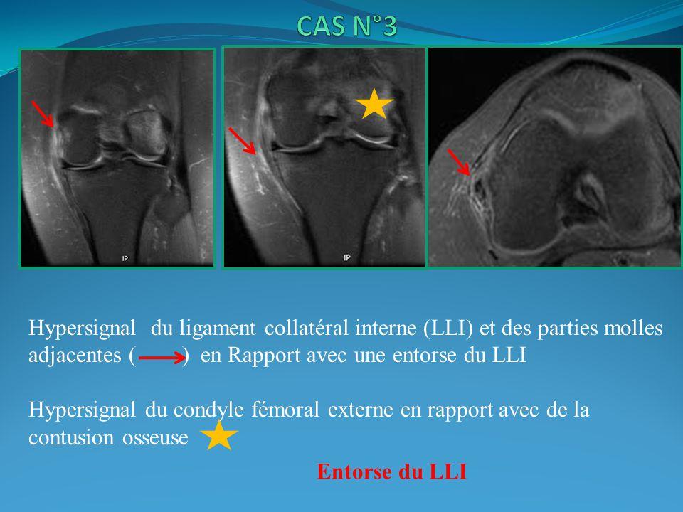 Hypersignal du ligament collatéral interne (LLI) et des parties molles adjacentes ( ) en Rapport avec une entorse du LLI Hypersignal du condyle fémoral externe en rapport avec de la contusion osseuse Entorse du LLI