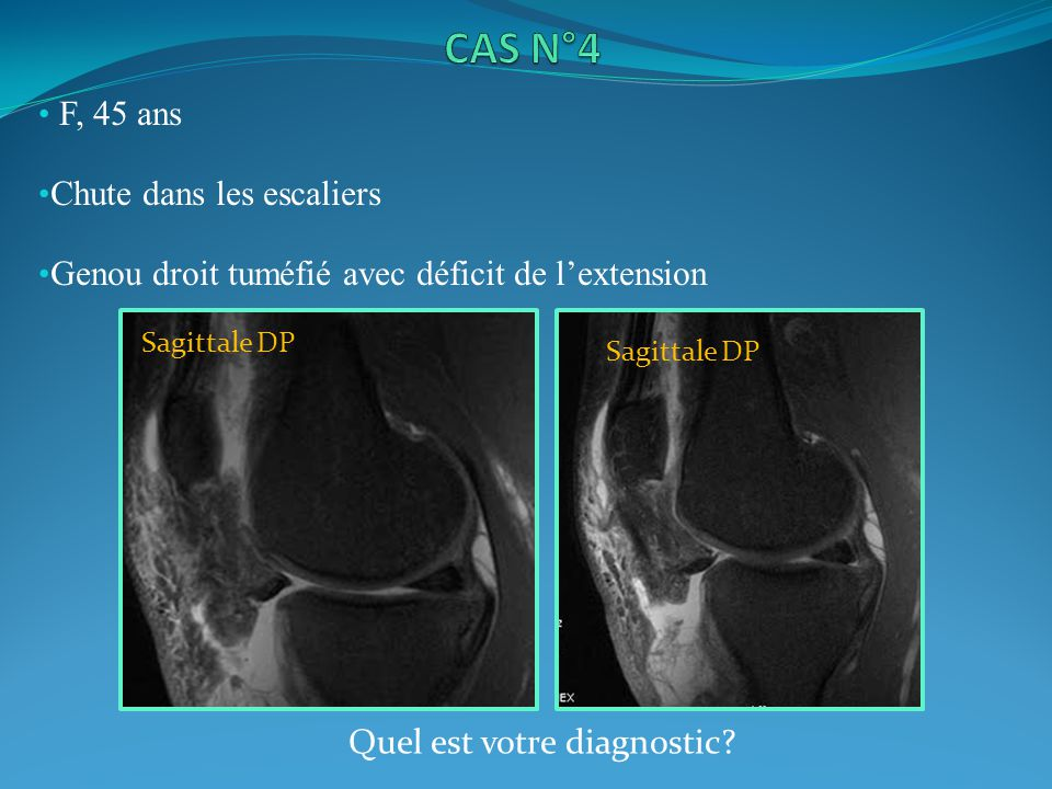 Rupture totale du tendon rotulien ( ) Infiltration des parties molles adjacentes