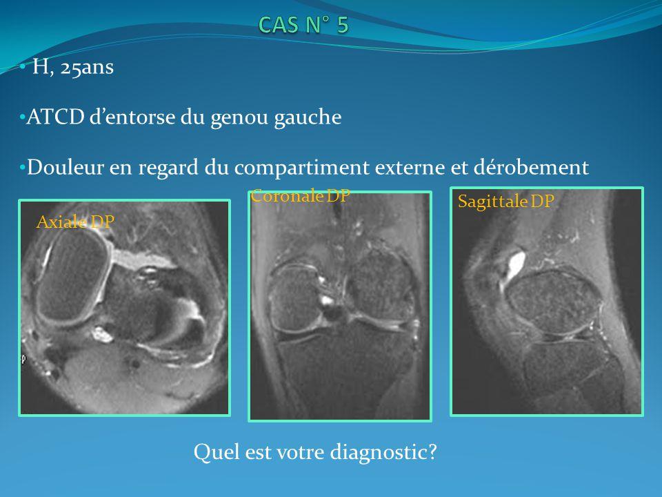H, 25ans ATCD dentorse du genou gauche Douleur en regard du compartiment externe et dérobement Sagittale DP Axiale DP Coronale DP Quel est votre diagnostic?