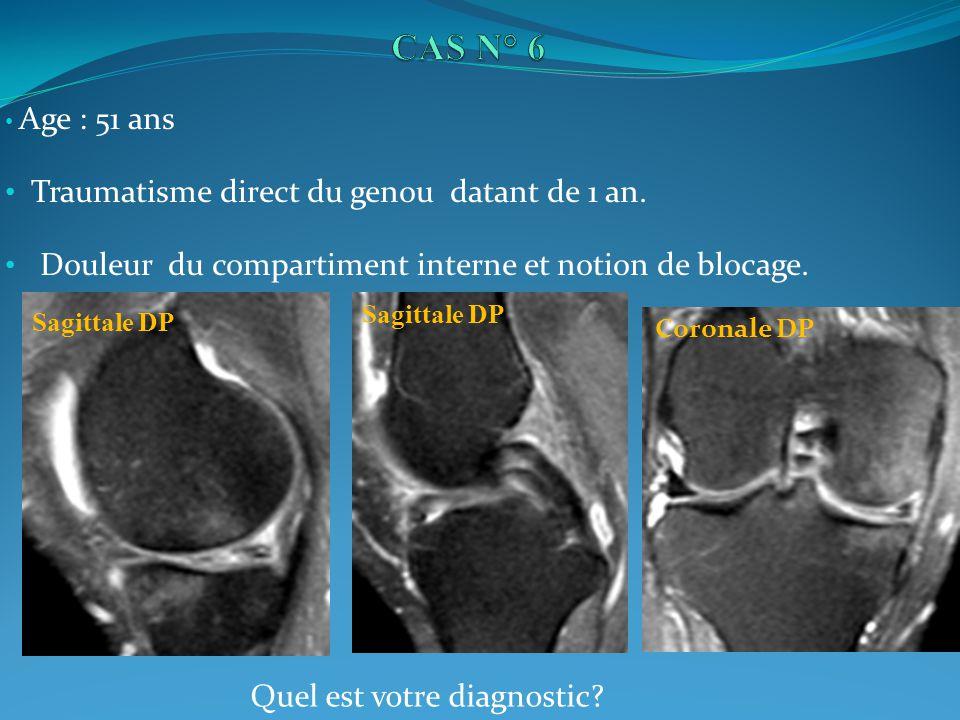 Age : 51 ans Traumatisme direct du genou datant de 1 an. Douleur du compartiment interne et notion de blocage. Sagittale DP Coronale DP Quel est votre