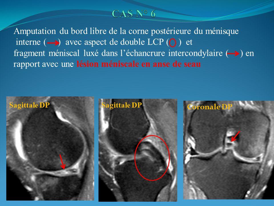 Amputation du bord libre de la corne postérieure du ménisque interne ( ) avec aspect de double LCP ( ) et fragment méniscal luxé dans léchancrure intercondylaire ( ) en rapport avec une lésion méniscale en anse de seau Sagittale DP Coronale DP
