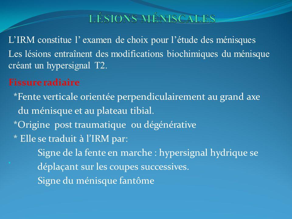 LIRM constitue l examen de choix pour létude des ménisques Les lésions entraînent des modifications biochimiques du ménisque créant un hypersignal T2.