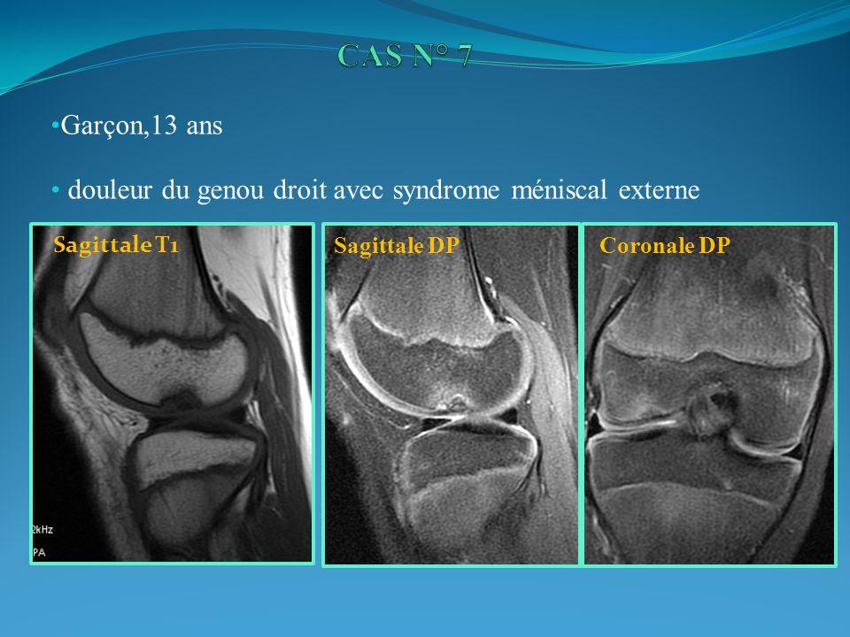 Garçon,13 ans douleur du genou droit avec syndrome méniscal externe Coronale DPSagittale DP Sagittale T1