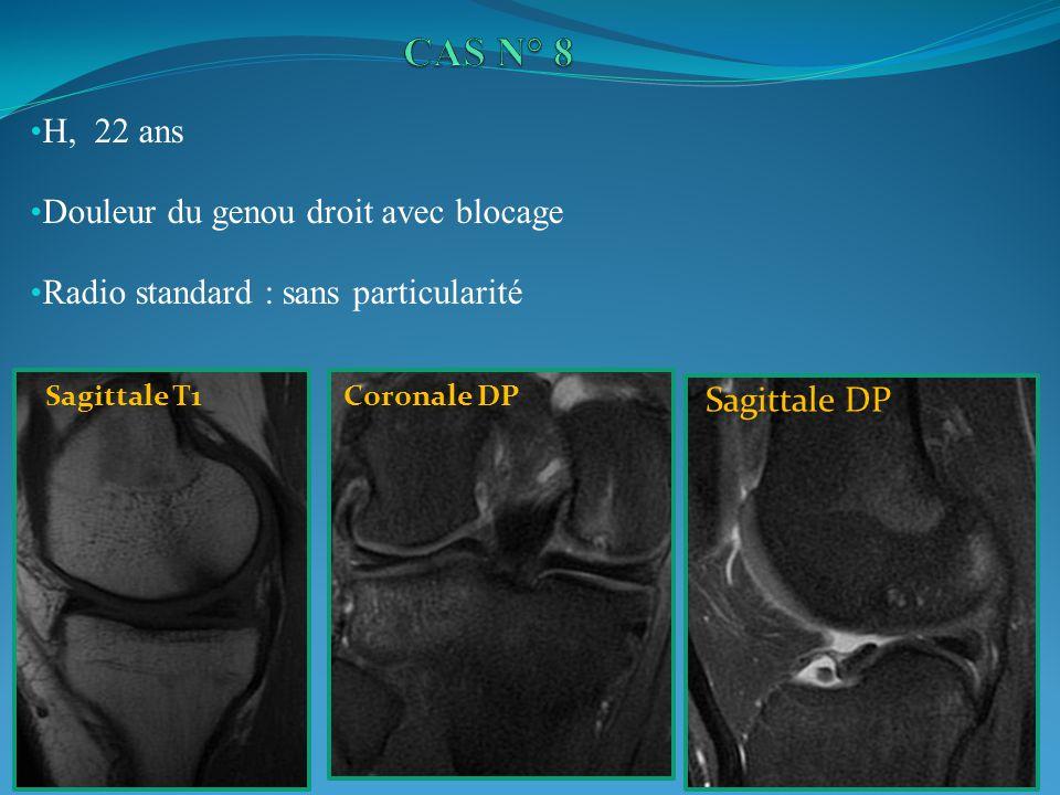 H, 22 ans Douleur du genou droit avec blocage Radio standard : sans particularité Sagittale T1Coronale DP Sagittale DP
