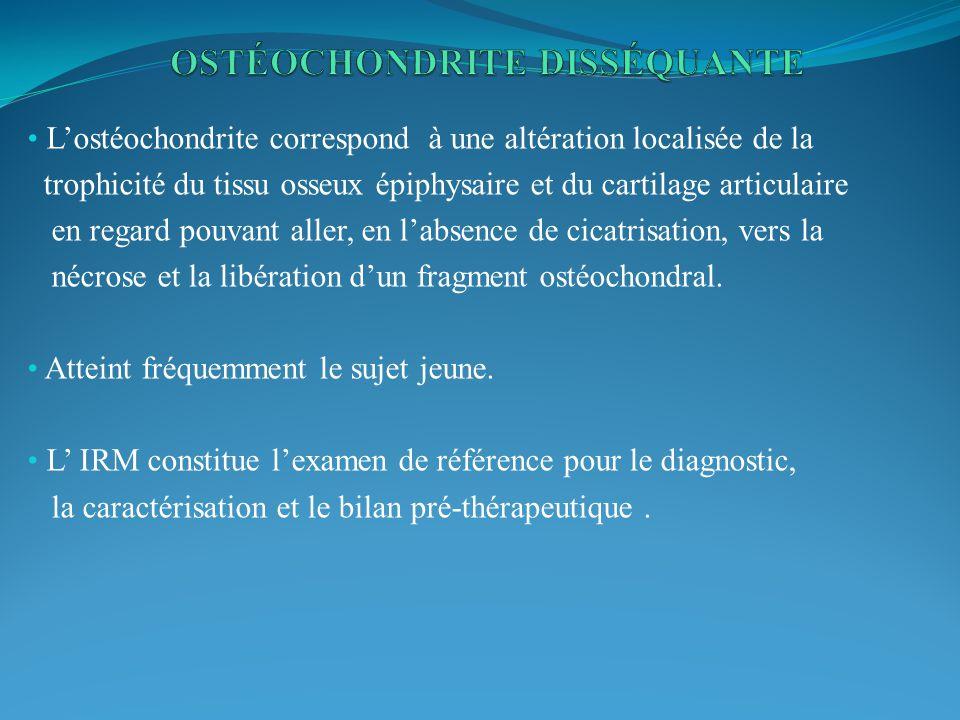 Lostéochondrite correspond à une altération localisée de la trophicité du tissu osseux épiphysaire et du cartilage articulaire en regard pouvant aller, en labsence de cicatrisation, vers la nécrose et la libération dun fragment ostéochondral.