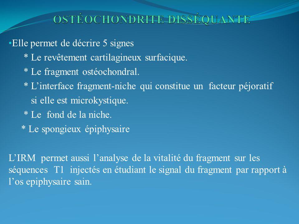 Elle permet de décrire 5 signes * Le revêtement cartilagineux surfacique. * Le fragment ostéochondral. * Linterface fragment-niche qui constitue un fa
