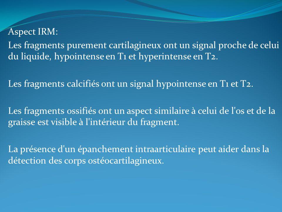Aspect IRM: Les fragments purement cartilagineux ont un signal proche de celui du liquide, hypointense en T1 et hyperintense en T2. Les fragments calc