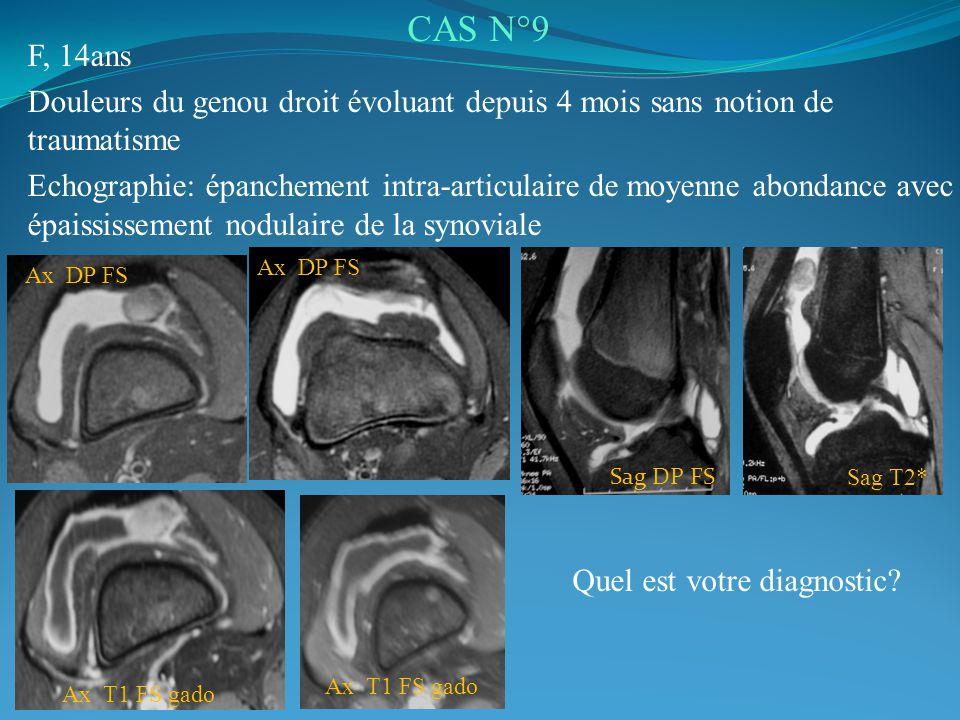 F, 14ans Douleurs du genou droit évoluant depuis 4 mois sans notion de traumatisme Echographie: épanchement intra-articulaire de moyenne abondance avec épaississement nodulaire de la synoviale CAS N°9 Quel est votre diagnostic.