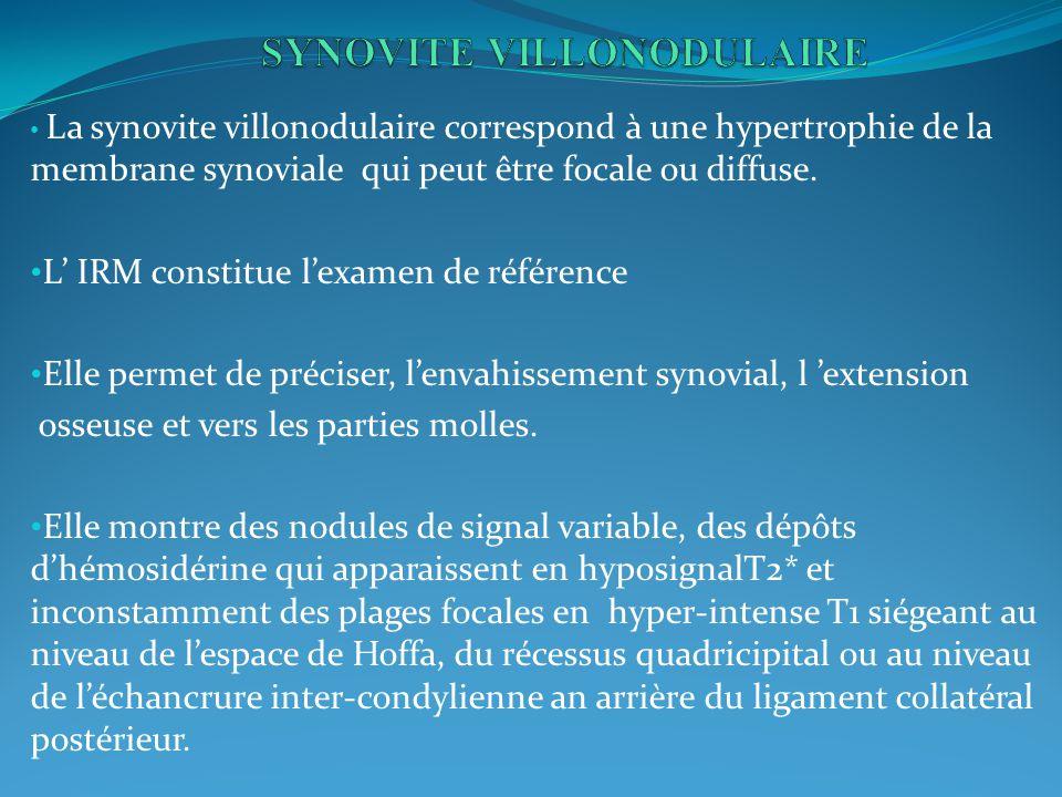 La synovite villonodulaire correspond à une hypertrophie de la membrane synoviale qui peut être focale ou diffuse.