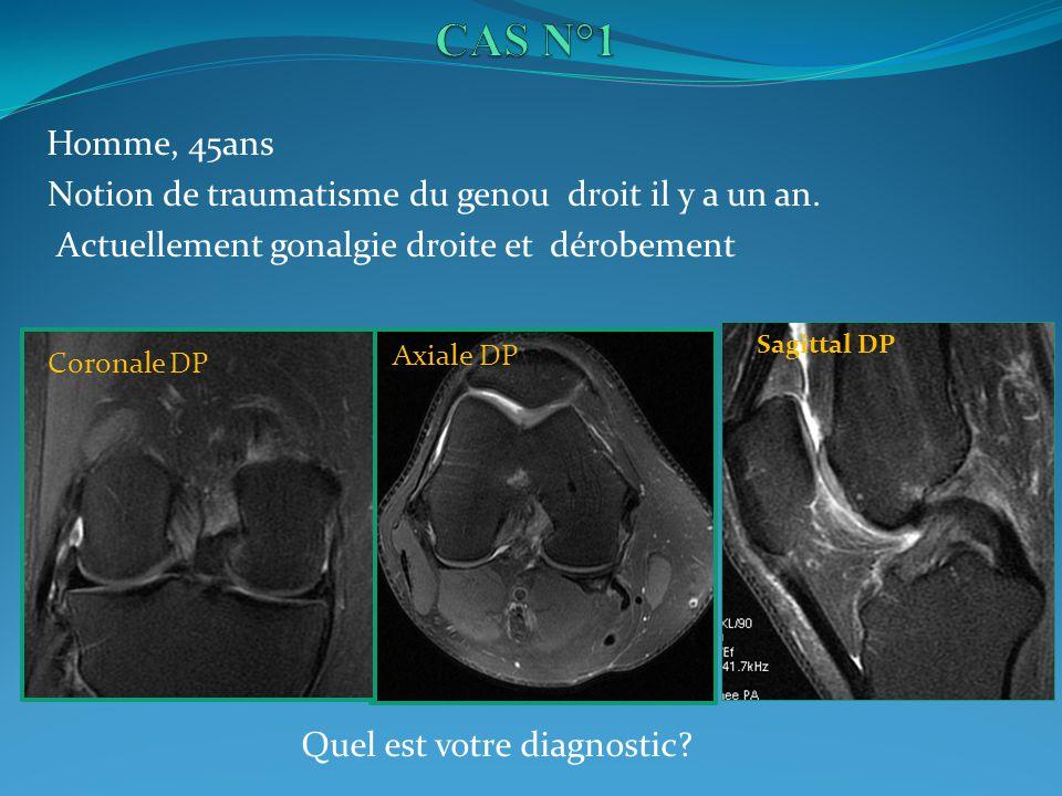 Homme, 45ans Notion de traumatisme du genou droit il y a un an. Actuellement gonalgie droite et dérobement Coronale DP Axiale DP Sagittal DP Quel est