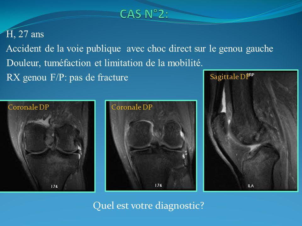 H, 27 ans Accident de la voie publique avec choc direct sur le genou gauche Douleur, tuméfaction et limitation de la mobilité. RX genou F/P: pas de fr