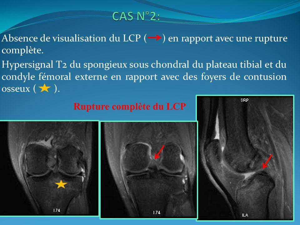 Absence de visualisation du LCP ( ) en rapport avec une rupture complète. Hypersignal T2 du spongieux sous chondral du plateau tibial et du condyle fé