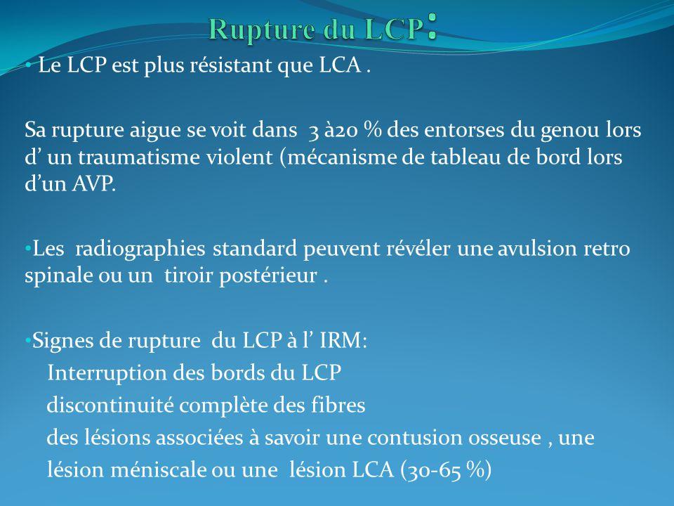 Le LCP est plus résistant que LCA. Sa rupture aigue se voit dans 3 à20 % des entorses du genou lors d un traumatisme violent (mécanisme de tableau de