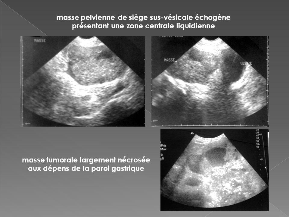 masse tumorale largement nécrosée aux dépens de la paroi gastrique masse pelvienne de siège sus-vésicale échogène présentant une zone centrale liquidi