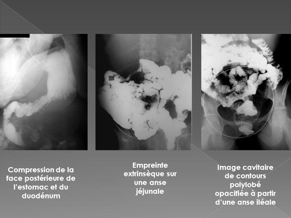 Compression de la face postérieure de lestomac et du duodénum Empreinte extrinsèque sur une anse jéjunale Image cavitaire de contours polylobé opacifi