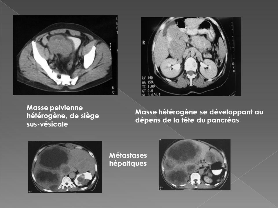 Masse pelvienne hétérogène, de siège sus-vésicale Masse hétérogène se développant au dépens de la tête du pancréas Métastases hépatiques