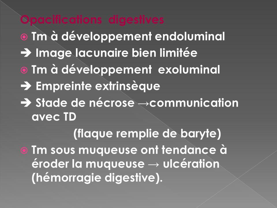 Opacifications digestives Tm à développement endoluminal Image lacunaire bien limitée Tm à développement exoluminal Empreinte extrinsèque Stade de néc