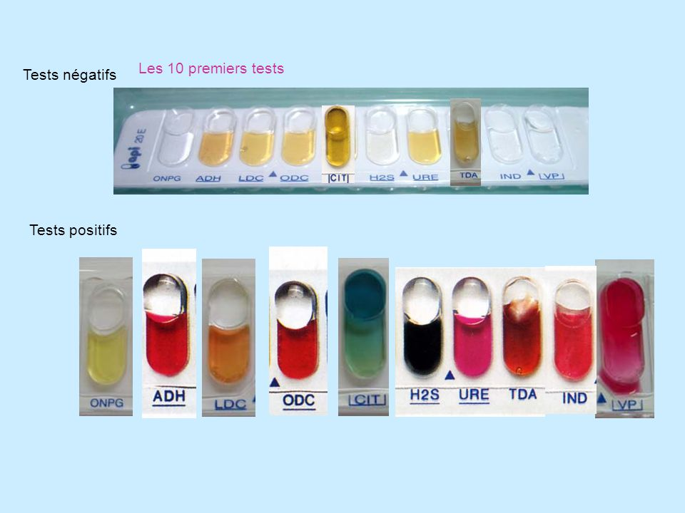 Les 10 derniers tests Tests négatifs Tests positifs NR +
