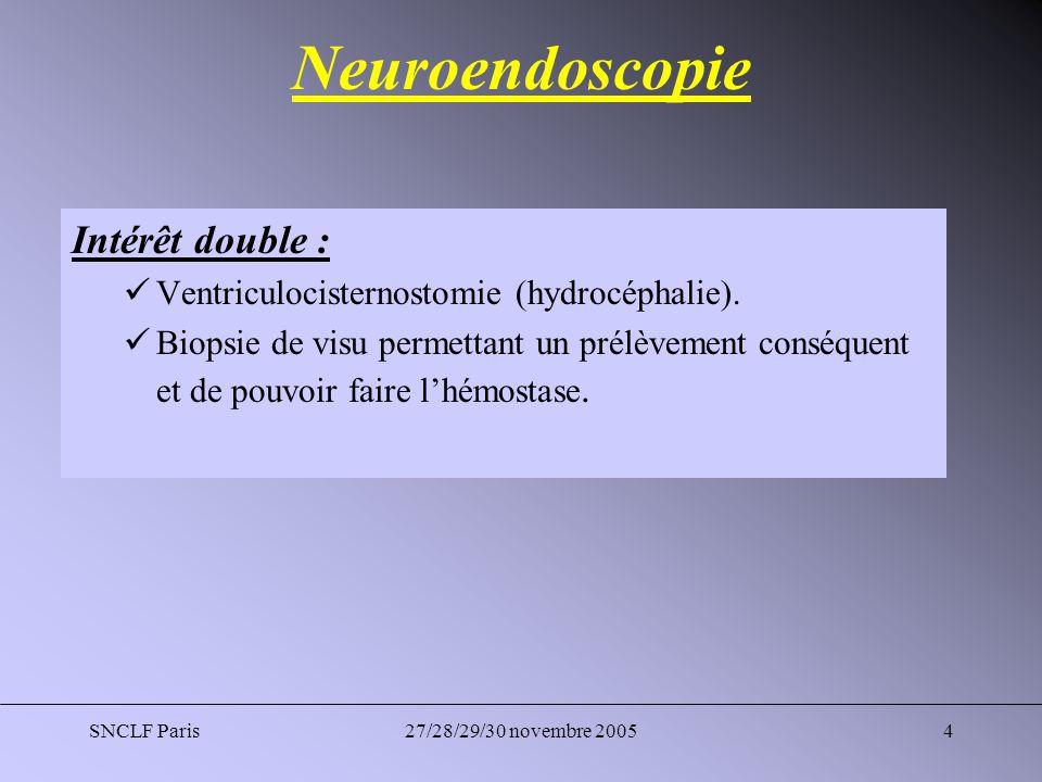 SNCLF Paris27/28/29/30 novembre 200515 Chirurgie Problématique : Maniabilité du neuroendoscope dans sa progression ant-post entre la VCS et la biopsie à travers un trou de trépan.