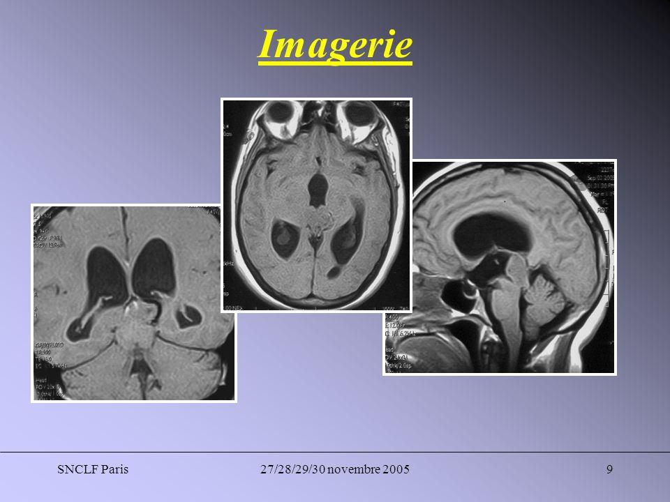 SNCLF Paris27/28/29/30 novembre 200520 Compléments Thérapeutiques Deux patients ont été repris pour une chirurgie dexérèse ; la lésion mésencéphalique (biopsie blanche) et le pinéaloblastome.