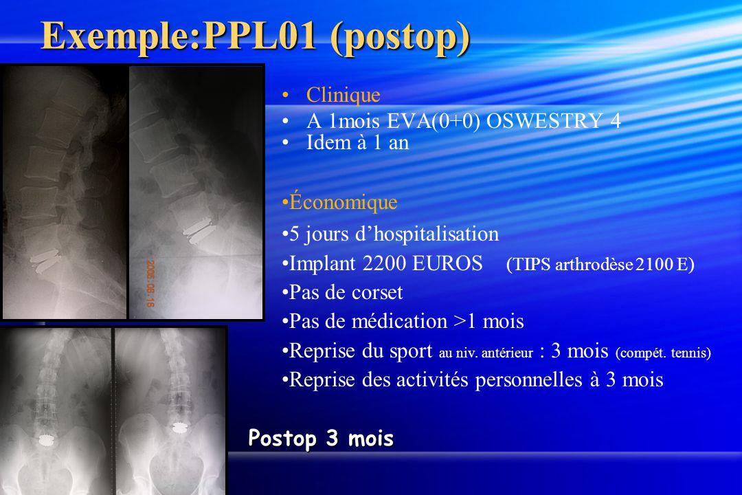Exemple:PPL01 (postop) Postop 3 mois Clinique A 1mois EVA(0+0) OSWESTRY 4 Idem à 1 an Économique 5 jours dhospitalisation Implant 2200 EUROS (TIPS art